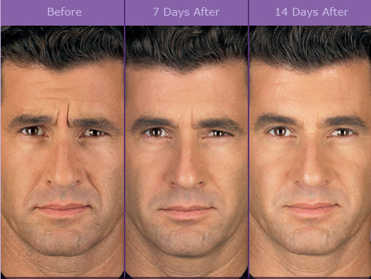 botox before after male
