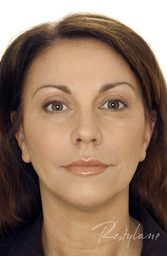 restylane dermal fillers after - middle aged woman