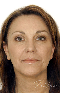 restylane dermal fillers - middle aged woman before